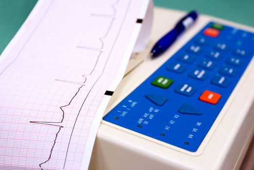An EKG is a test that checks for problems with the electrical activity of your heart as line tracings on paper.